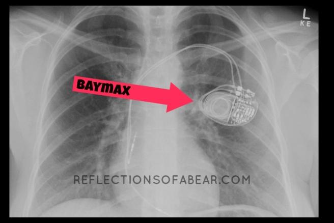 Blog Chest Xray
